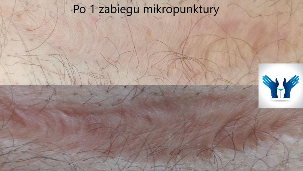 Blizna po jednym zabiegu mikropunktury